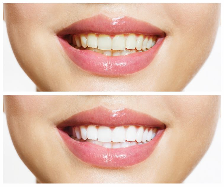 Cosmetic Dentistry For a Brighter Smile