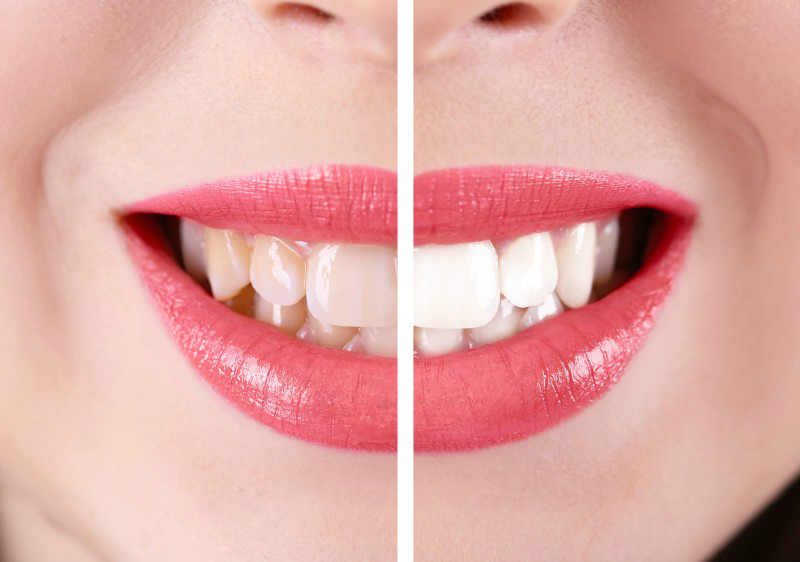 Can Anyone Perform Teeth Whitening Procedures? Tips on Choosing a Dentist!