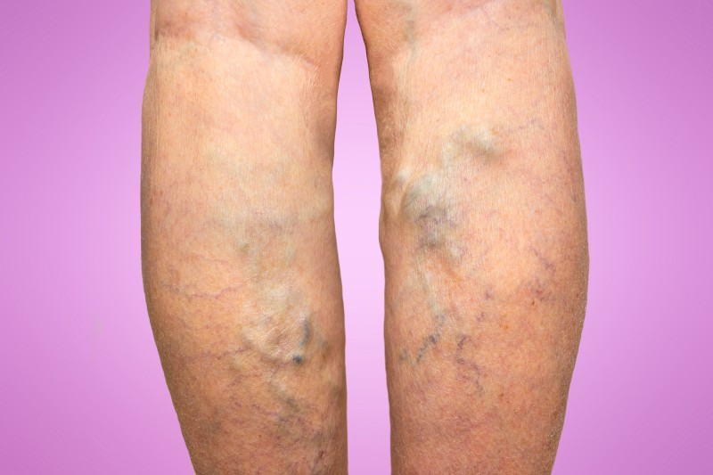 Preparing for Sclerotherapy in Schaumburg by Learning More About It Today