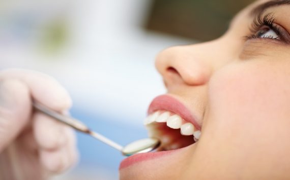 What You Need to Know About Dental Implants in West Fargo, ND