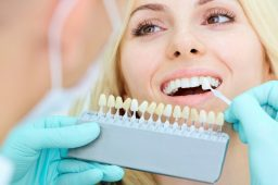 Benefits of Professional Teeth Whitening