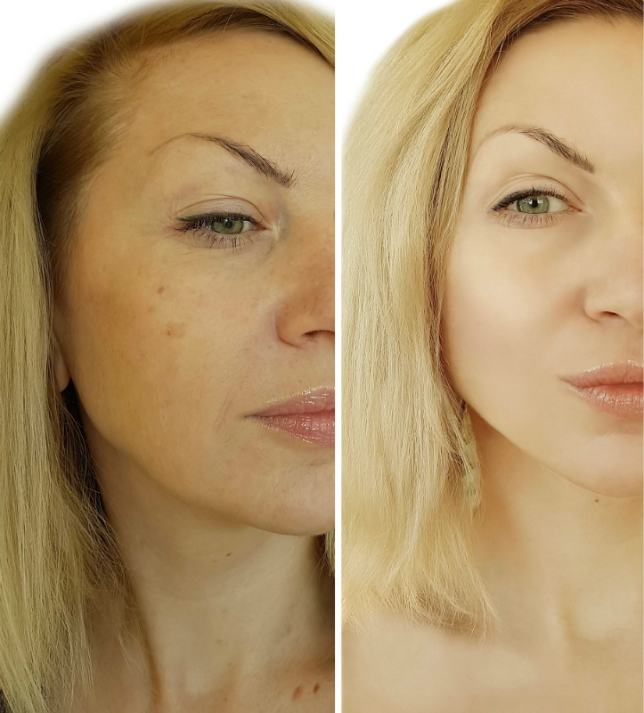 Why Should You Consider a Non Invasive Neck Lift Instead of Surgery?