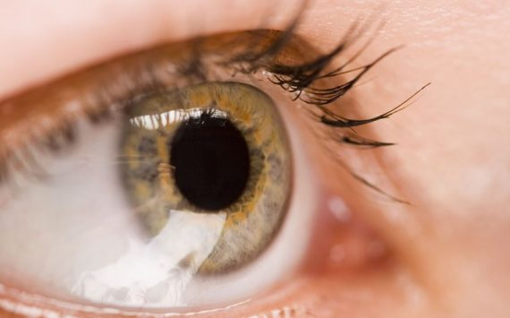 3 Tips to Help You Prevent Macular Degeneration in Boca Raton