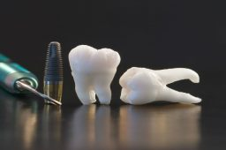 Caring for Dental Implants in Detroit MI