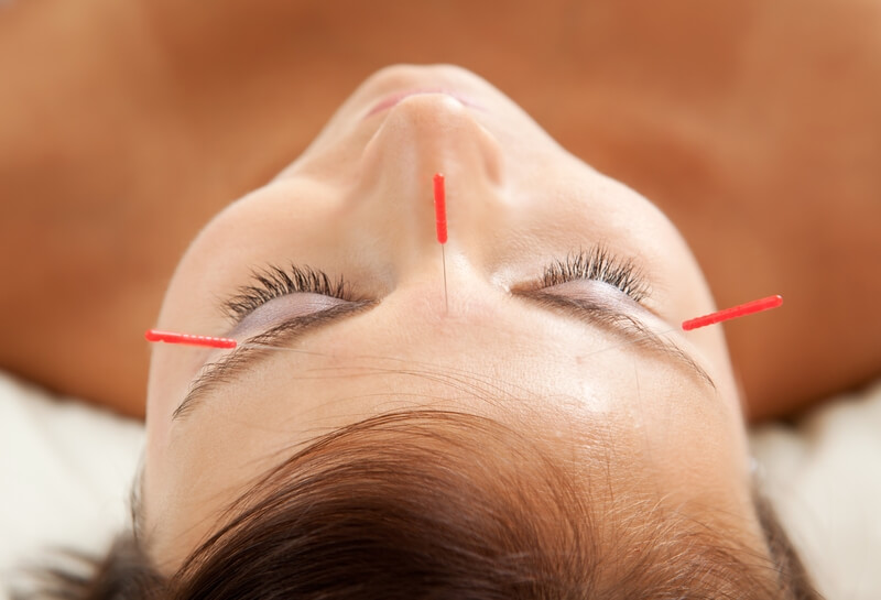 Benefits of Acupuncture Treatments